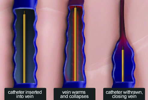 Catheter in Vein