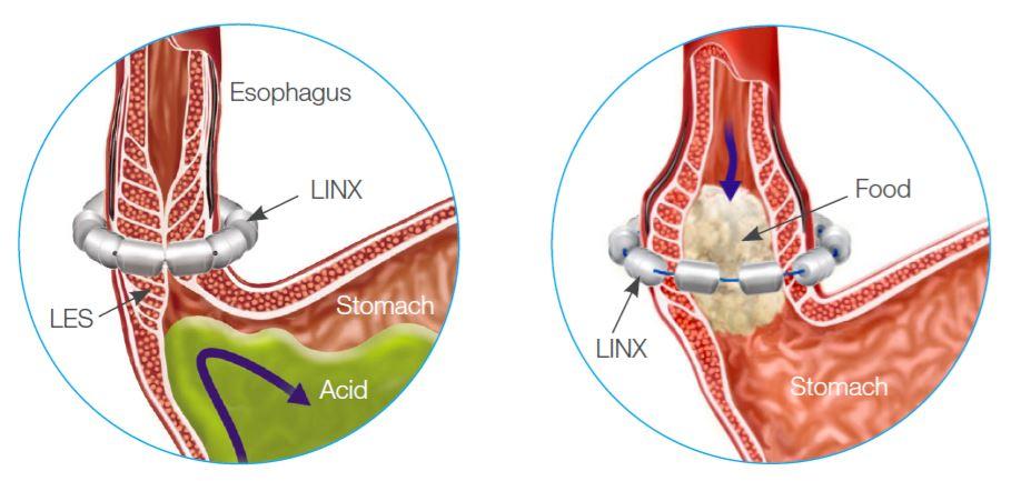 Linx Acid Reflux